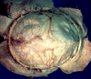 Human_brain_dura_mater